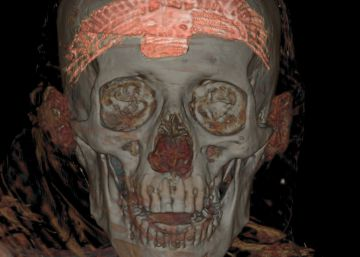 momia arqueológico era oculista faraón