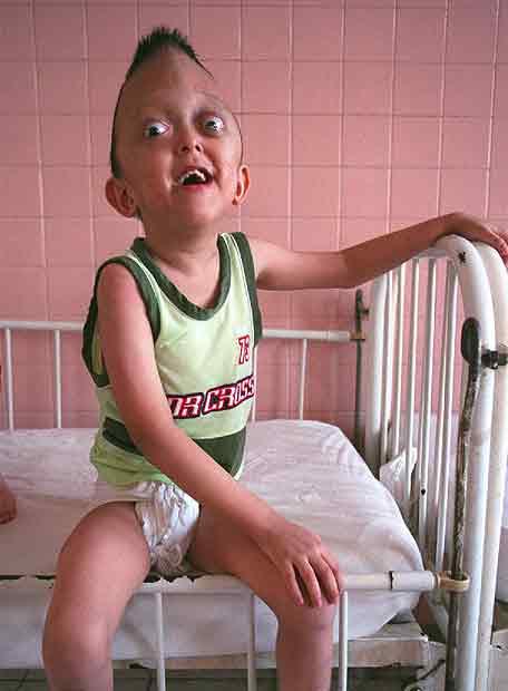 Niño víctima del 'agente naranja'