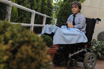 Javier Gonzalez se encuentra en tratamiento para alargarse los huesos