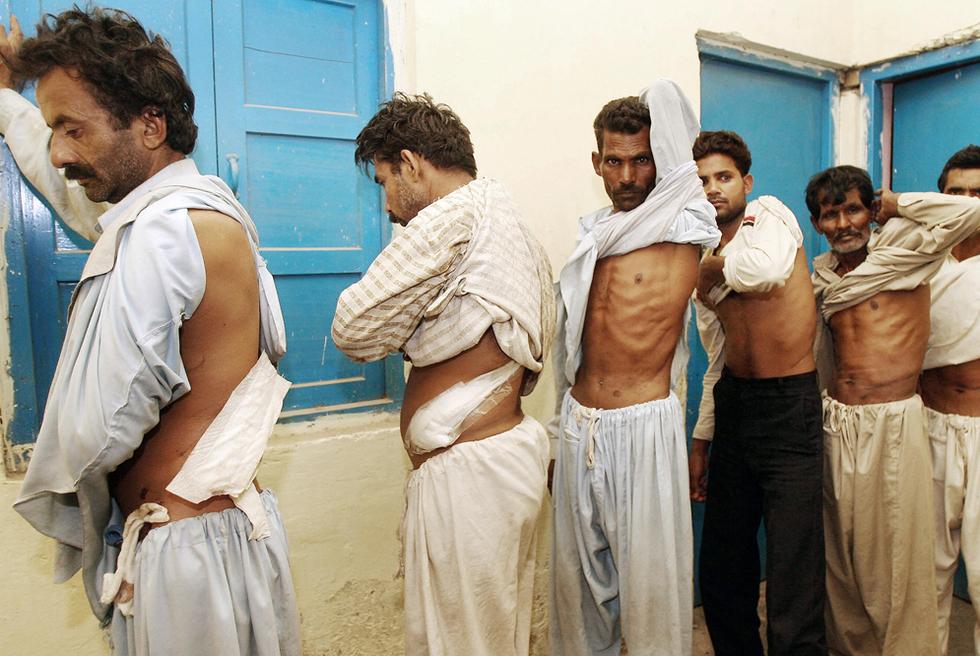 Compraventa, tráfico de órganos humanos... Kosovo, Israel, Alemania... Redución de trasplantes, España. Venta_rinones
