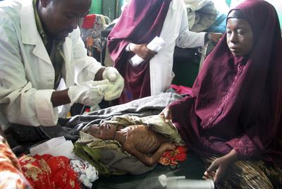 Un médico prepara alimentación por vía nasal para un niño