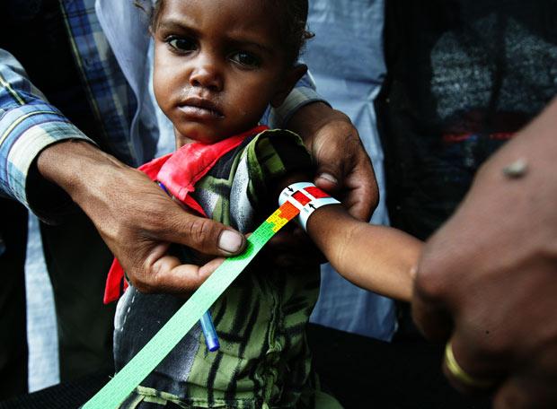 Las diez crisis humanitarias más desatendidas del 2008 - Desnutrición