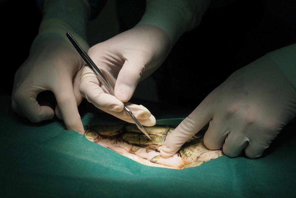 Detalle de un momento de la operación de la tortuga Omsin.