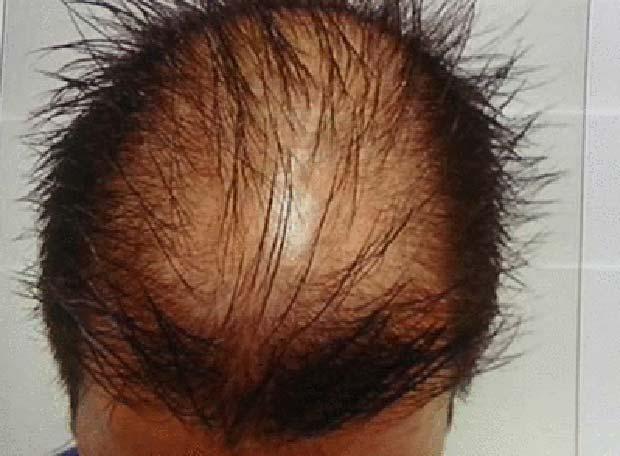 La máscara para los cabellos de avena molochka