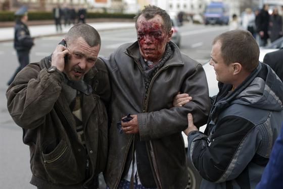 Víctima de la explosión en el metro de Minsk