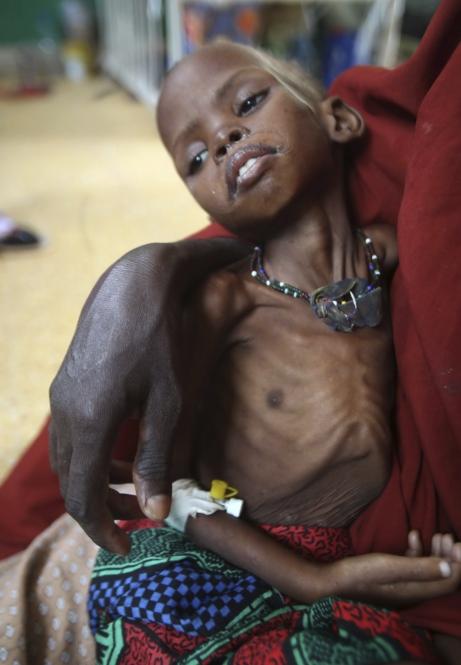 La infancia se lleva la peor parte de la crisis humanitaria