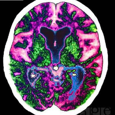 http://www.elpais.com/recorte/20071022elpepisoc_1/LCO340/Ies/cerebro_aquejado_alzheimer.jpg