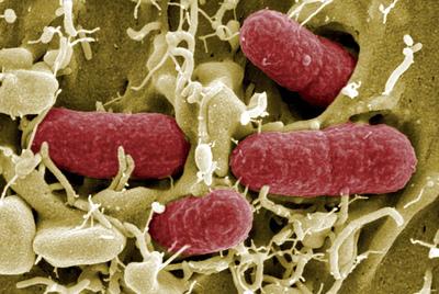 Bacteria mortal