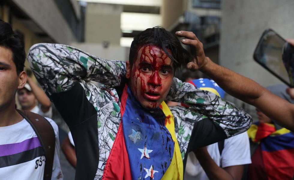 Manifestante é ferido em protesto em Caracas.