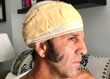 Los médicos descartan que Juan José Padilla sufra daños en la cabeza