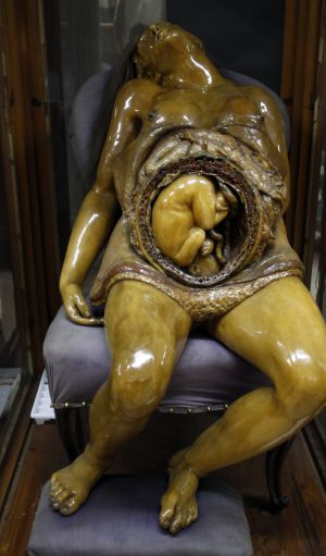 A Mother's 200-year-old Gift To Anatomy
