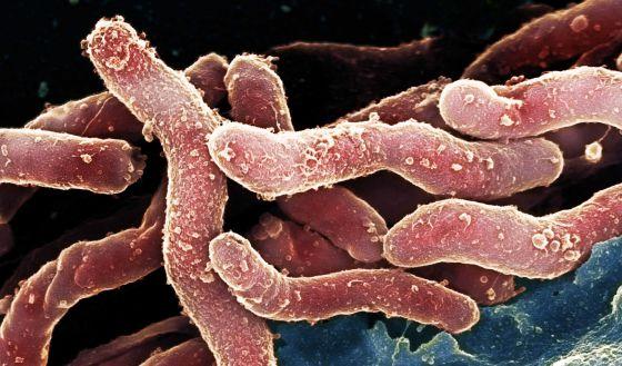 Una Vacuna Experimental Consigue Protecciones Del 72 Contra La úlcera Ciencia El País