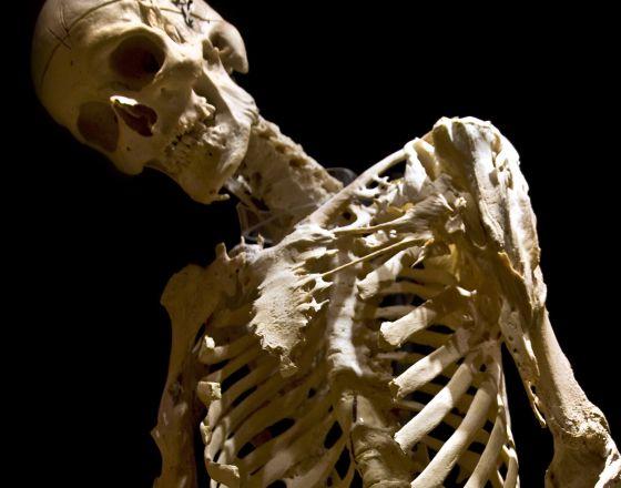 Cura metastasis tiene en los huesos la