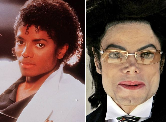 Michael Jackson fue uno de los cantantes que más cirugías se hizo. No solo se respingó la nariz y acentuó la mandíbula (operaciones a las que se sometió en más de una ocasión); el artista se sometió a un tratamiento para blanquear su piel.