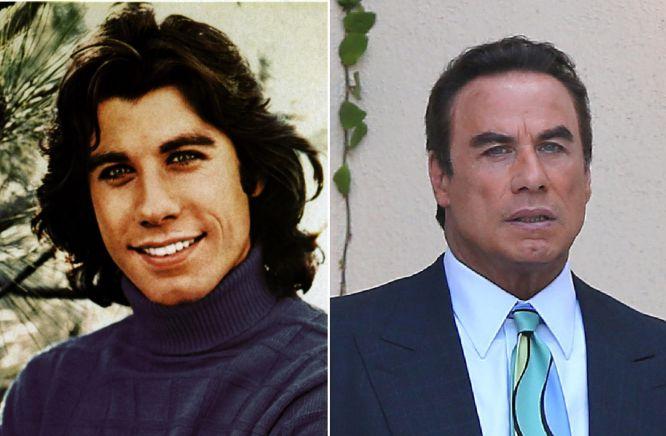John Travolta se ha estirado tanto la piel que las redes sociales no han tardo mucho en apodarlo como: el hombre de cera. Su rostro se ha quedado casi sin facciones y su sonrisa es casi nula, pues tiene muy tensos los músculos faciales.