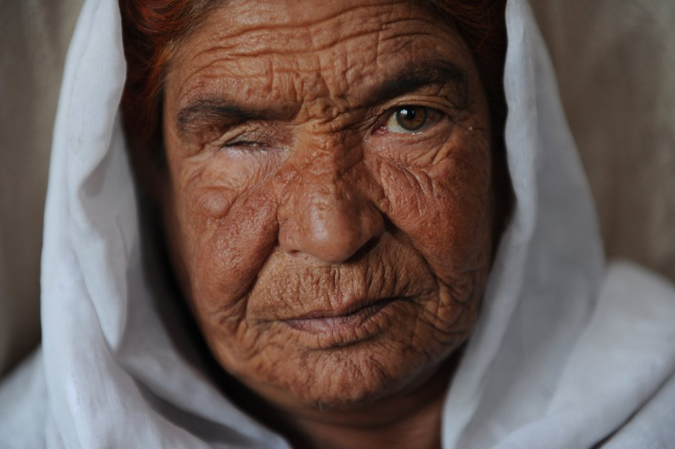 Fotos: La colina de las viudas de Kabul   Internacional   EL PAÍS