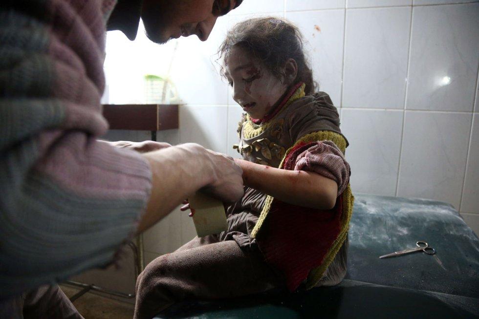 """En la imagen, una niña siria es atendida en un hospital de campaña tras un bombardeo, el 8 de febrero de 2018. """"Esta semana, decenas de niños han muerto y muchos más han resultado heridos por la intensificación de la violencia en distintas zonas de Siria. La violencia no parece disminuir. Tan solo en Ghuta Oriental, cientos de niños necesitan ser evacuados urgentemente para recibir atención médica"""", ha explicado la directora ejecutiva de UNICEF, Henrietta H. Fore."""