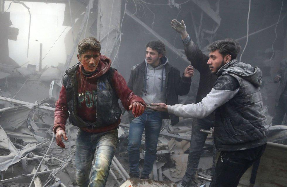 Entre los heridos figuran decenas de menores de edad, agregando que el balance de víctimas mortales podría aumentar debido a que algunos de ellos se encuentran en estado crítico y a la existencia de desaparecidos. En la imagen, un herido recibe ayuda tras el bombardeo aéreo en la ciudad de Arbin, al este de Ghuta, el 8 de febrero de 2018.