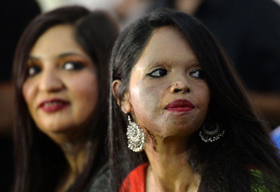 Duas das modelos que participam do desfile organizado por 'Stop Acid Sale' esperam o início do evento, em 7 de março.