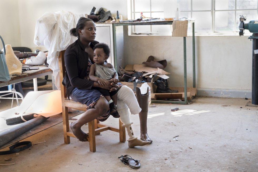 En el Hospital de Servicios Integrales de Rehabilitación de Uganda (CoRSU) facilitaron a Joan su primera prótesis bien adaptada, gracias a su participación en el estudio sobre ajustes protésicos impresos en 3D que realiza el centro.rn
