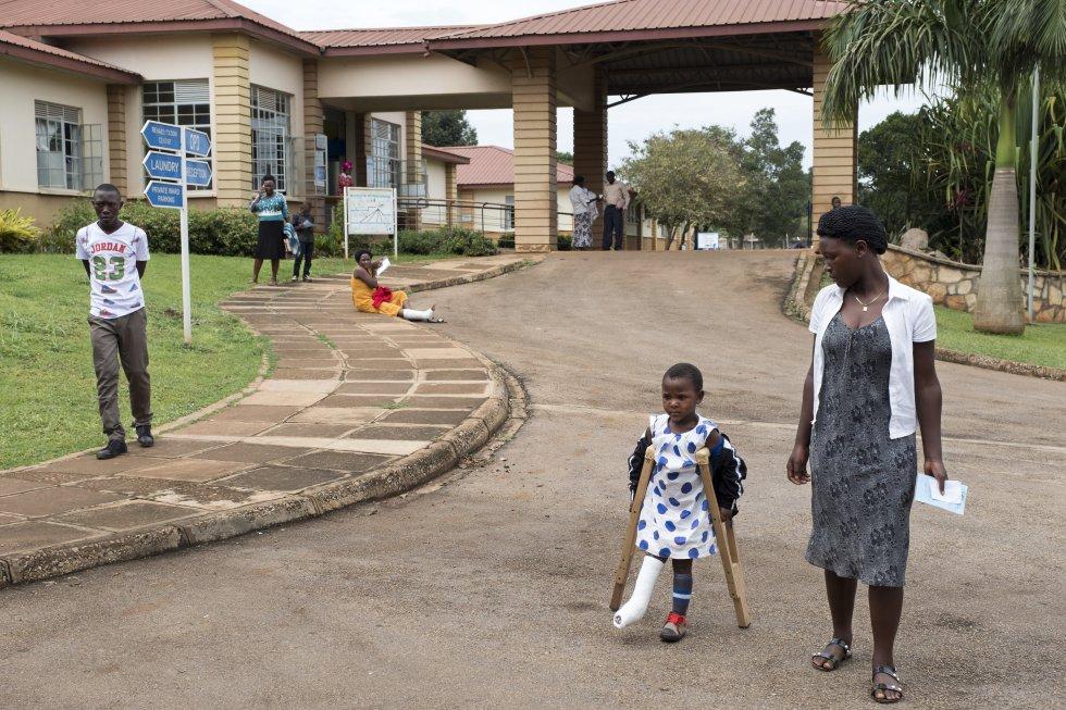 En el hospital CoRSU, la cirugía infantil es gratuita. Ayinemani Juliet, de cinco años, sufrió quemaduras graves cuando se cayó en la lumbre de su casa. En la clínica ugandesa le recuperan la pierna y el pie.