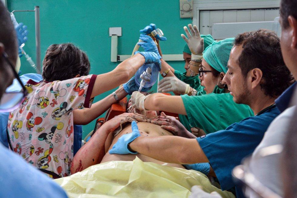 Uno de los supervivientes del avión Boeing-737 que se estrelló poco después de despegar del aeropuerto José Martí de La Habana (Cuba), es atendida en el hospital Calixto García de La Habana.