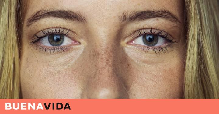 perdida de melanina en los ojos