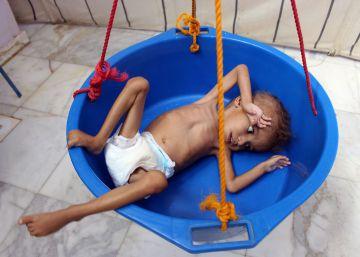 El hambre acecha a la infancia en Yemen
