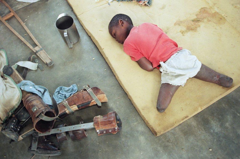 Un niño huérfano, con las piernas amputadas por debajo de la rodilla, descansa sobre una colchoneta en un orfanato de Nyanza, al suroeste de Kigali (Ruanda), el 9 de junio de 1994.