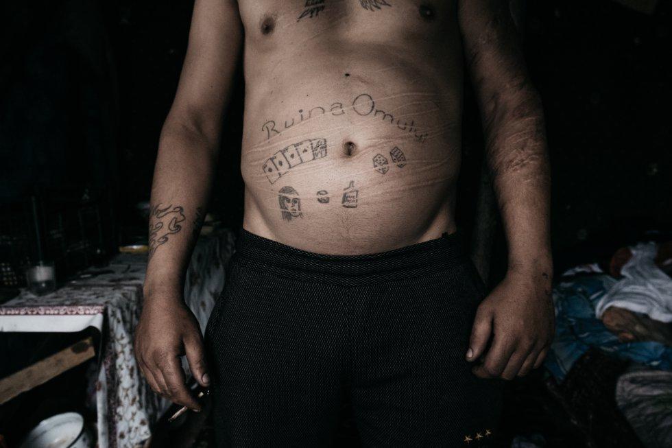 """""""La ruina de los hombres"""" es el mensaje que se ha tatuado un miembro de la comunidad de Pata Rat en el estómago."""