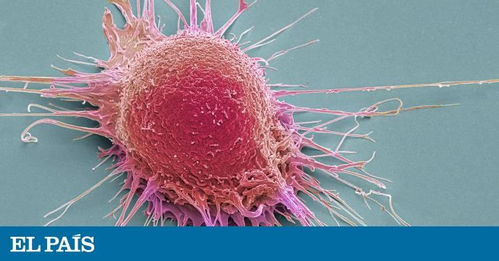 Síntomas y curas del cáncer de próstata 2020