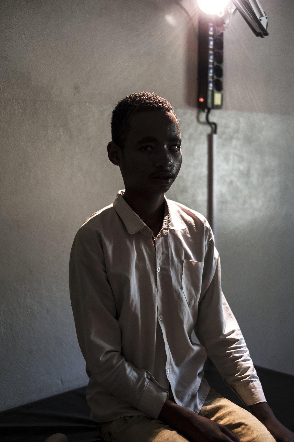 Un joven afectado de catarata secundaria, sentado en la clínica local de Gassa, en la región de Dawro.
