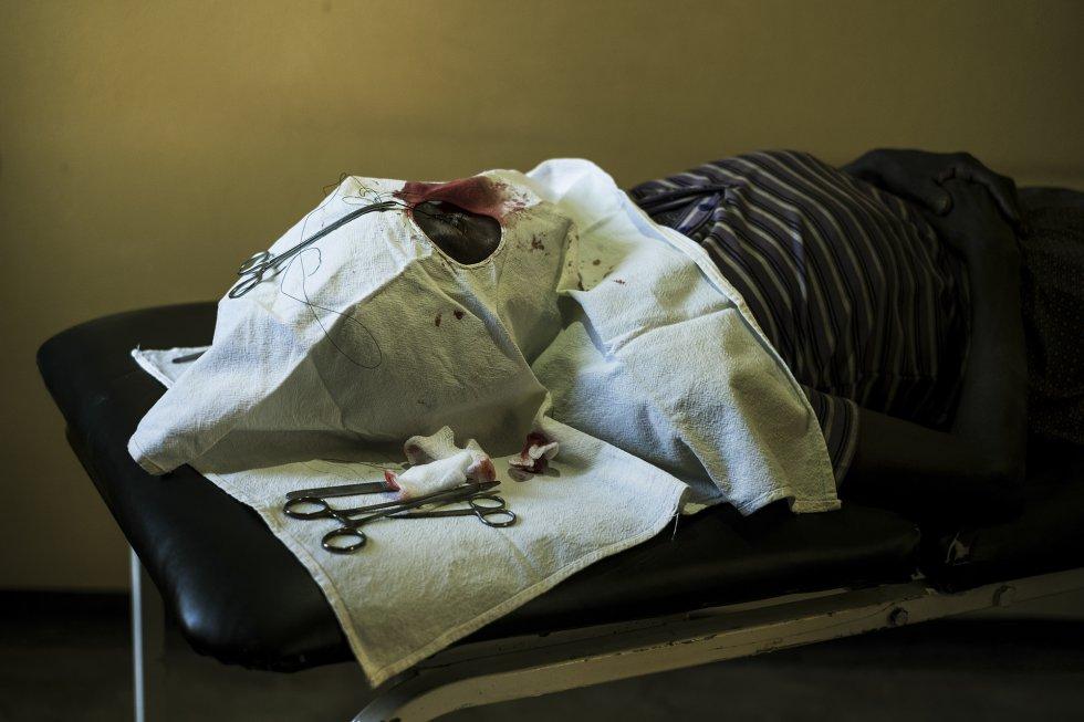 Una mujer tumbada sobre la mesa de operaciones tras una intervención oftalmológica en Gassa, en la región de Dawro.
