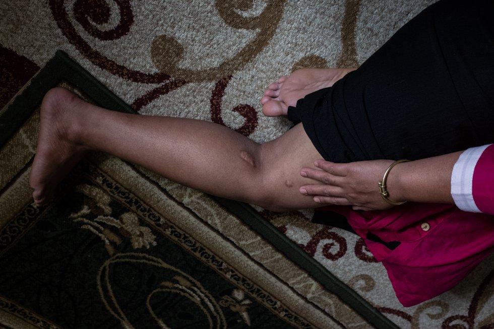 T., superviviente del tráfico sexual, que pidió permanecer en el anonimato, se descubre la pierna en una casa de Katmandú, capital de Nepal, para mostrar las cicatrices de las heridas que le infligieron durante las violaciones, el maltrato y la esclavización que sufrió en Kuwait. T. creía que había ido allí a trabajar en el servicio doméstico, pero en realidad la tuvieron encerrada para que los hombres de la familia y los invitados a sus fiestas la violasen. rnrn T. pidió que no se revelase su identidad, ya que las supervivientes de la trata padecen una profunda estigmatización, y en general la sociedad nepalí sigue teniéndolas por prostitutas ‒lo cual se considera una ocupación deshonrosa‒, sin importar que las obligasen a ello. En la mayoría de los casos, después de que las rescaten, las comunidades las expulsan y las familias las excluyen. rnrn Dado que la sociedad nepalí es profundamente patriarcal, la mayoría de sus miembros piensa que el matrimonio es el mecanismo de reintegración más aceptado, fiable y deseado. Por eso, algunas supervivientes ocultan a sus futuros esposos su pasado y su condición de seropositivas, y viven con el temor a que se descubra lo que han sufrido. rnrn A raíz de los numerosos y demoledores informes sobre el trato que los jefes dan a los empleados en los países del Golfo, Nepal estableció procedimientos estrictos de cribado en el aeropuerto internacional de Katmandú para las mujeres que viajan allí para trabajar. A pesar de ello, el tráfico no ha disminuido. Ahora, en vez de volar directamente desde Katmandú, miles de nepalíes analfabetas se dirigen al Golfo a través de India, Bangladés y Sri Lanka. Otras siguen cayendo en las redes del tráfico a través del aeropuerto internacional de Nepal sin que las autoridades les hagan preguntas. Eso ha despertado la sospecha de que las autoridades nepalíes de emigración están involucradas en la trata.