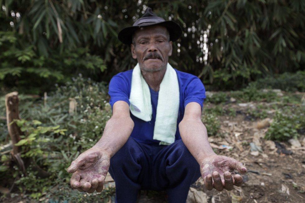 Oha, de 70 anos, tem o corpo coberto de dermatites.  Ele mora a poucos metros do Citarum e passou 36 anos colhendo a grama que cresce ao longo do leito do rio para alimentar as cabras.  Ele está em tratamento há três anos e aplica uma pomada de cortisona.  Oito médicos diferentes o reconheceram 25 vezes, mas como ele não tem possibilidade de ir morar longe do rio, não pode ser curado.