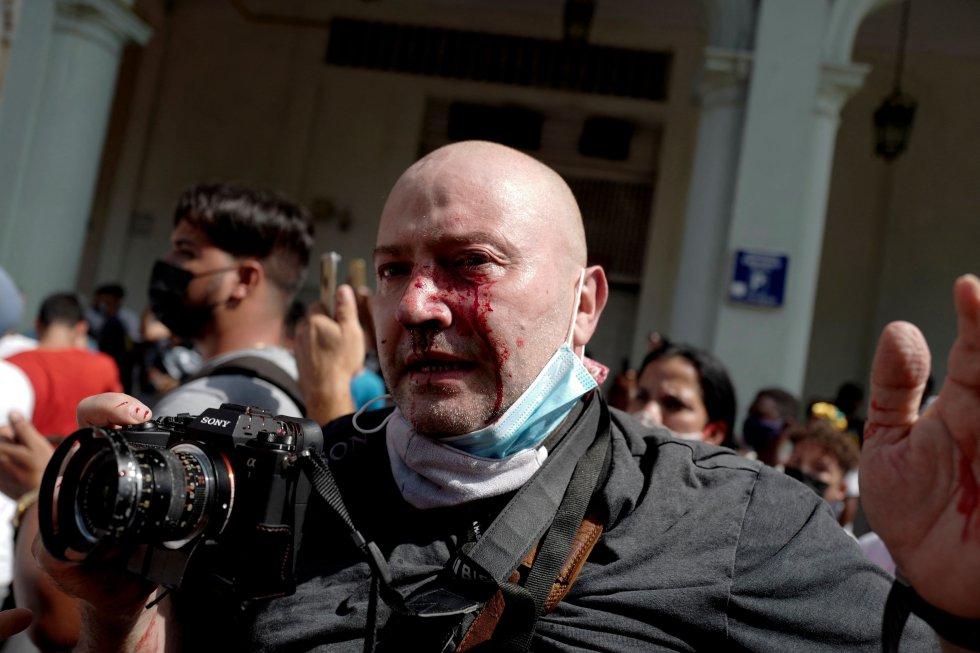 El fotógrafo español de la agencia de noticias Associated Press Ramón Espinosa fue agredido por agentes mientras cubría las protestas. Los detenidos por la policía fueron más de un centenar, pero no se disolvió la manifestación con gases lacrimógenos.