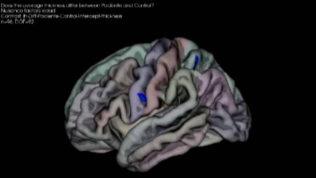 Neurociencia: ¿Qué le hace la música a nuestro cerebro? | Ciencia ...