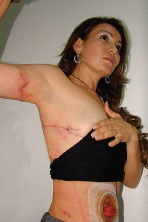 torturada y asesinada una exalcaldesa mexicana