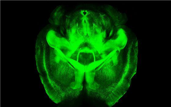 Cientficos De EE UU Crean Un Cerebro Transparente Que