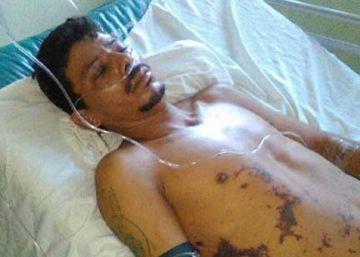 Un caso de brutalidad policial conmociona Nicaragua