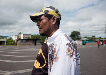 Quemados con ácido por protestar contra Ortega