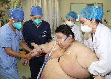 101 kilos más a causa del confinamiento