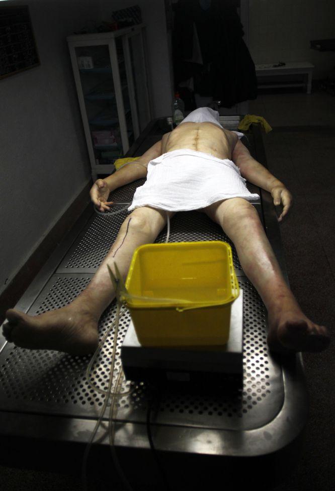 Fotos: Cadáveres para la ciencia   Sociedad   EL PAÍS