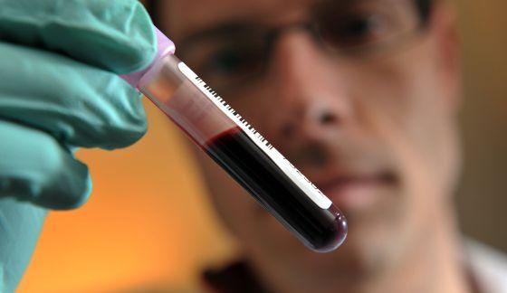 que detecta el pcr en sangre