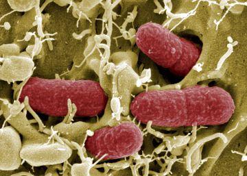 Bacterias típicamente españolas
