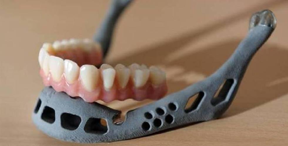 Un niño chino recibe el primer trasplante de una mandíbula creada con una impresora 3D
